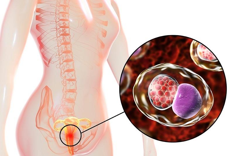 Tổng quan về bệnh chlamydia