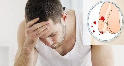 Dương vật bị chảy máu khi quan hệ