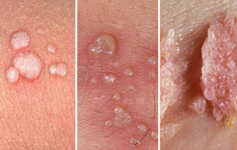 Những bệnh thường gặp do virus HPV